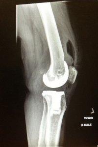 zdjęcie kolana
